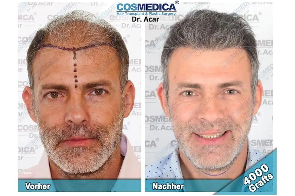 Kostet haartransplantation in männern was eine deutschland bei Haartransplantation